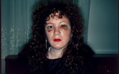 Nan Goldin violencia de género autorretrato con lesiones